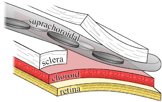 Novel_Surgical